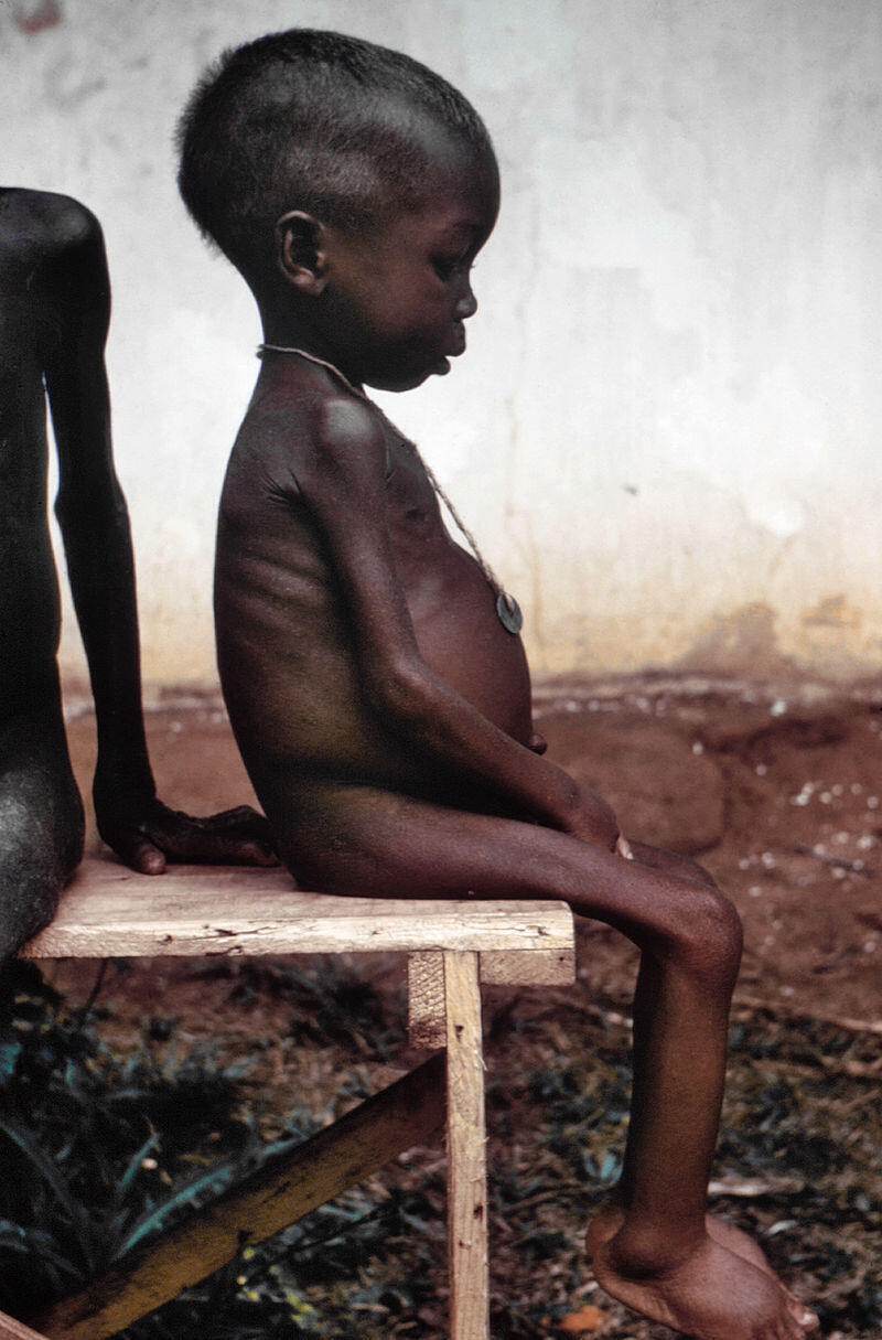 A child suffering from malnutrition during the blockade
