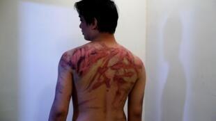 香港元朗白衣人暴力襲擊事件受害者Calvin So於醫院展現傷勢資料圖片