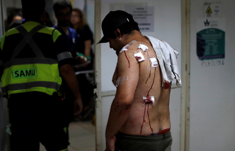 Un homme blessé par des billes en plastiques lestées de métal utilisées par la police attend d'être pris en charge dans un hôpital de Santiago le 12 novembre 2019.