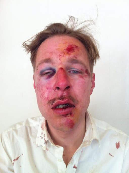 La photo de Wilfred de Bruijn, animateur de télévision néerlandais, victime d'une agression homophobe, à Paris en 2013.