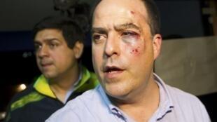 Advogado opositor Julio Borges chega em coletiva de imprensa de olho roxo