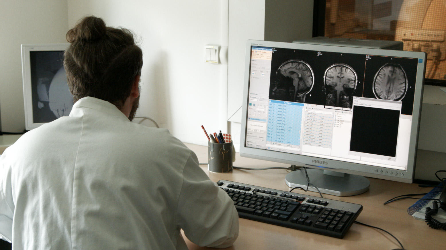 El estudio REMEMBER se basa en el análisis de imágenes biomédicas hechas en personas expuestas a los atentados.