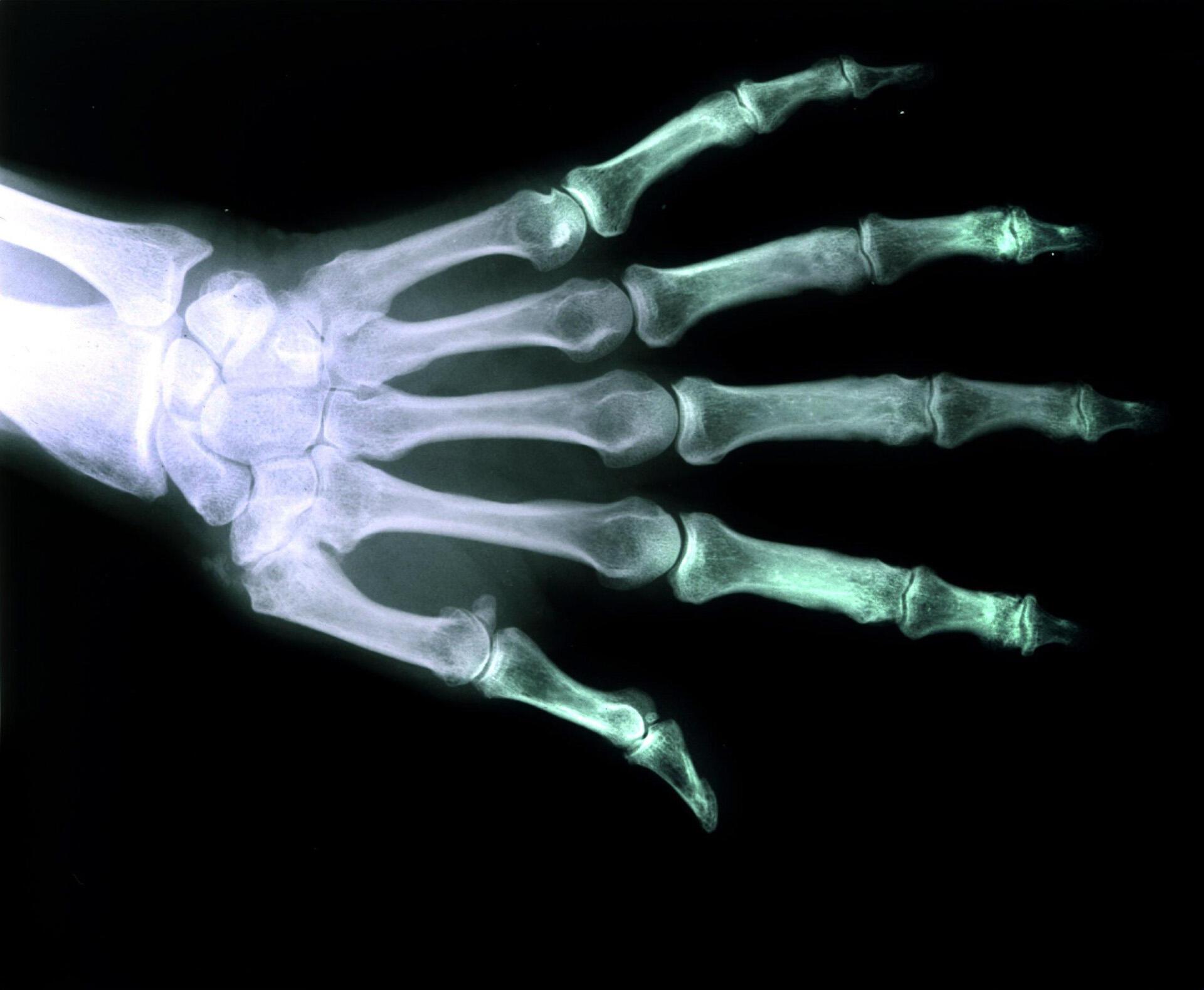 Une société danoise a mis au point une méthode d'impression 3D d'implants osseux parfaitement adaptés au corps.