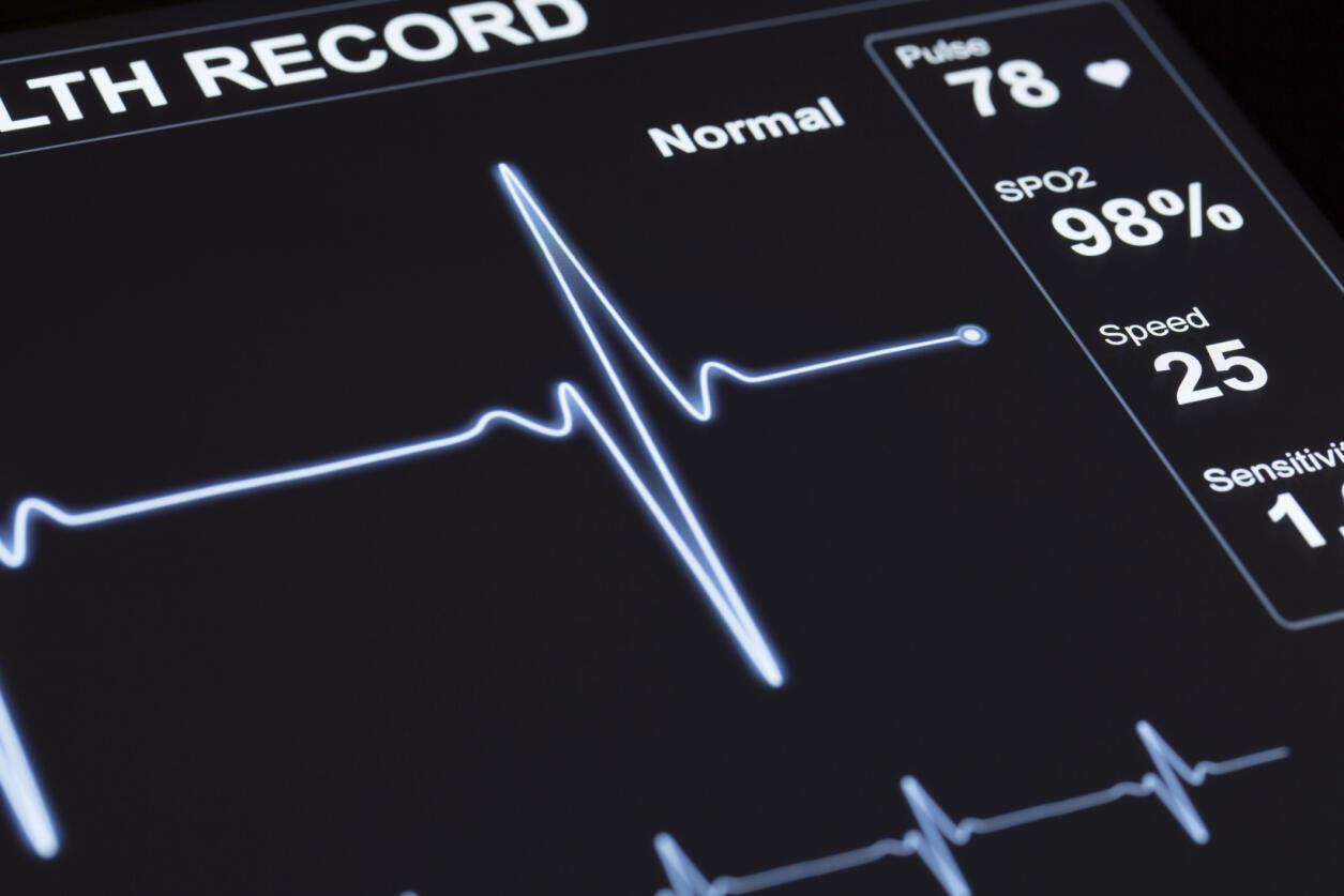 Les signes d'alerte d'un infarctus peuvent différer chez les hommes et les femmes.