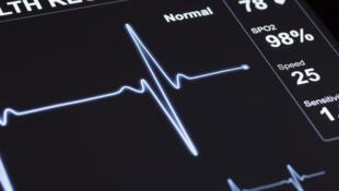 Un moniteur indiquant des pulsations cardiaques.