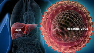 Hepatitis C is transmitted through the blood