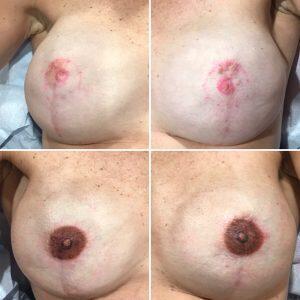 Tatuaje de la areola y del pezón, 6 años después de una doble mastectomía