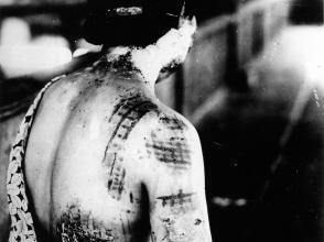 Gonichi KIMURA, Motifs de kimono incrustés par brûlure dans la peau Premier hôpital militaire d'Hiroshima, vers le 15 août 1945, photographie Hiroshima, Mémorial de la Paix d'Hiroshima.