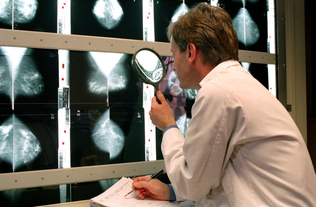 Doctor examines a medical image.