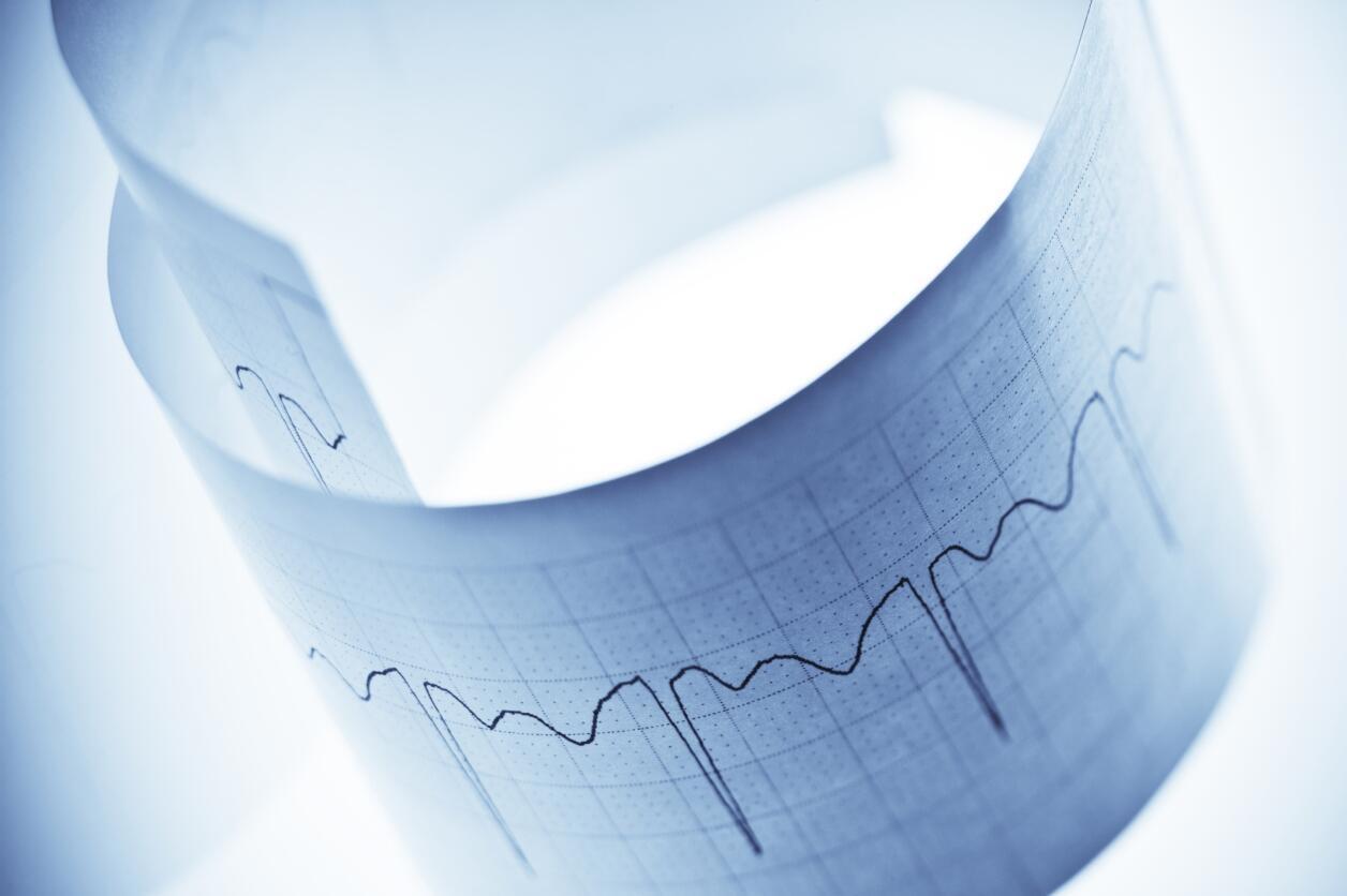 Ryhtme cardiaque, cardiologie.