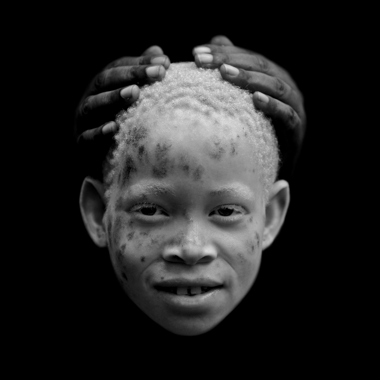 Jeune albinos africaine.