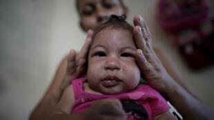 Cutar Zika na haddasa haihuwar yara da nakasa musamman a kawunansu