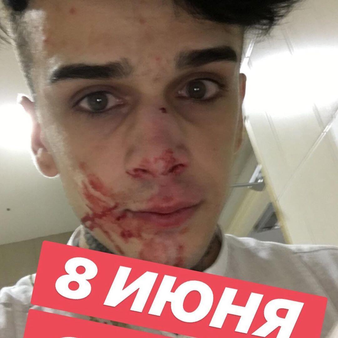 Савик после нападения