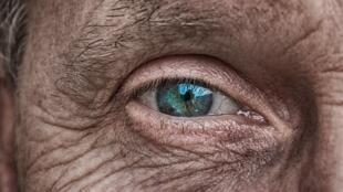 Environ 25 à 30 millions de personnes dans le monde souffrent de DMLA (dégénérescence maculaire liée à l'âge)
