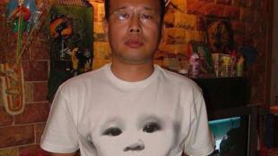 中国结石宝宝之父赵连海