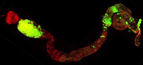 Tubo digestivo de la mosca Drosophila con células tumorales (en color verde ).