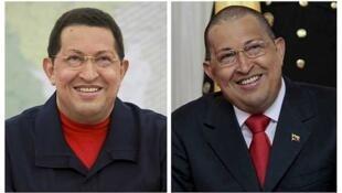 rais wa Venezuela, Hugo Chávez, anaesumbuliwa na maradhi