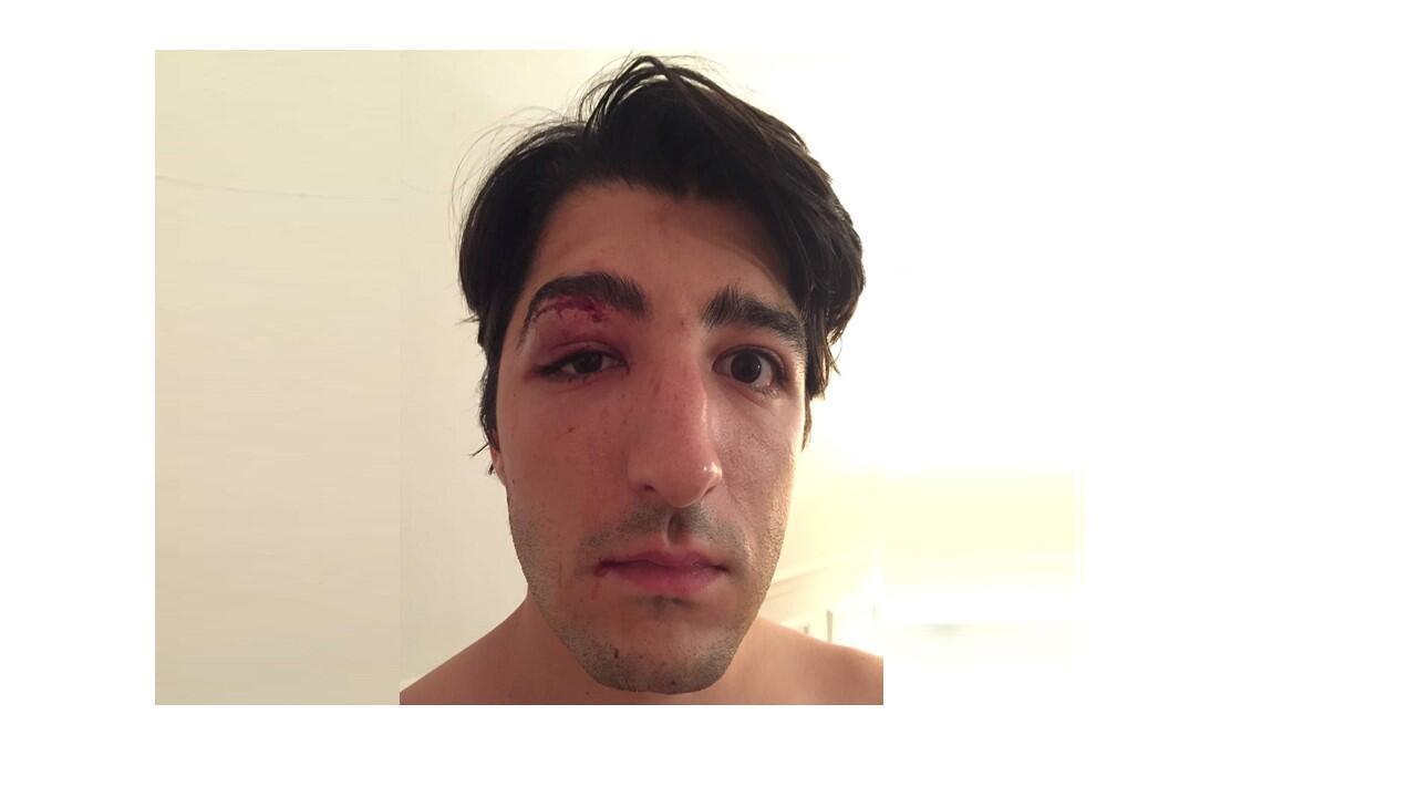 Arnaud Gagnoud postou uma foto na qual é possível ver os pontos de sutura no rosto logo após a agressão.
