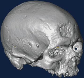 L'endocrâne de Cro-Magnon 1 a été reconstruit virtuellement en 3 dimensions sur ordinateur.