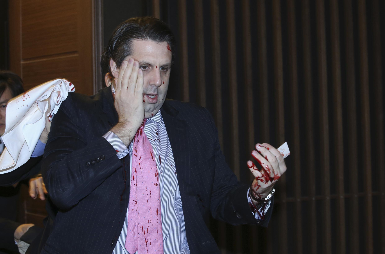 L'ambassadeur américain en Corée du Sud Mark Lippert a été blessé au visage et à la main par un agresseur nationaliste armé d'un couteau de cuisine, jeudi 5 mars 2015.