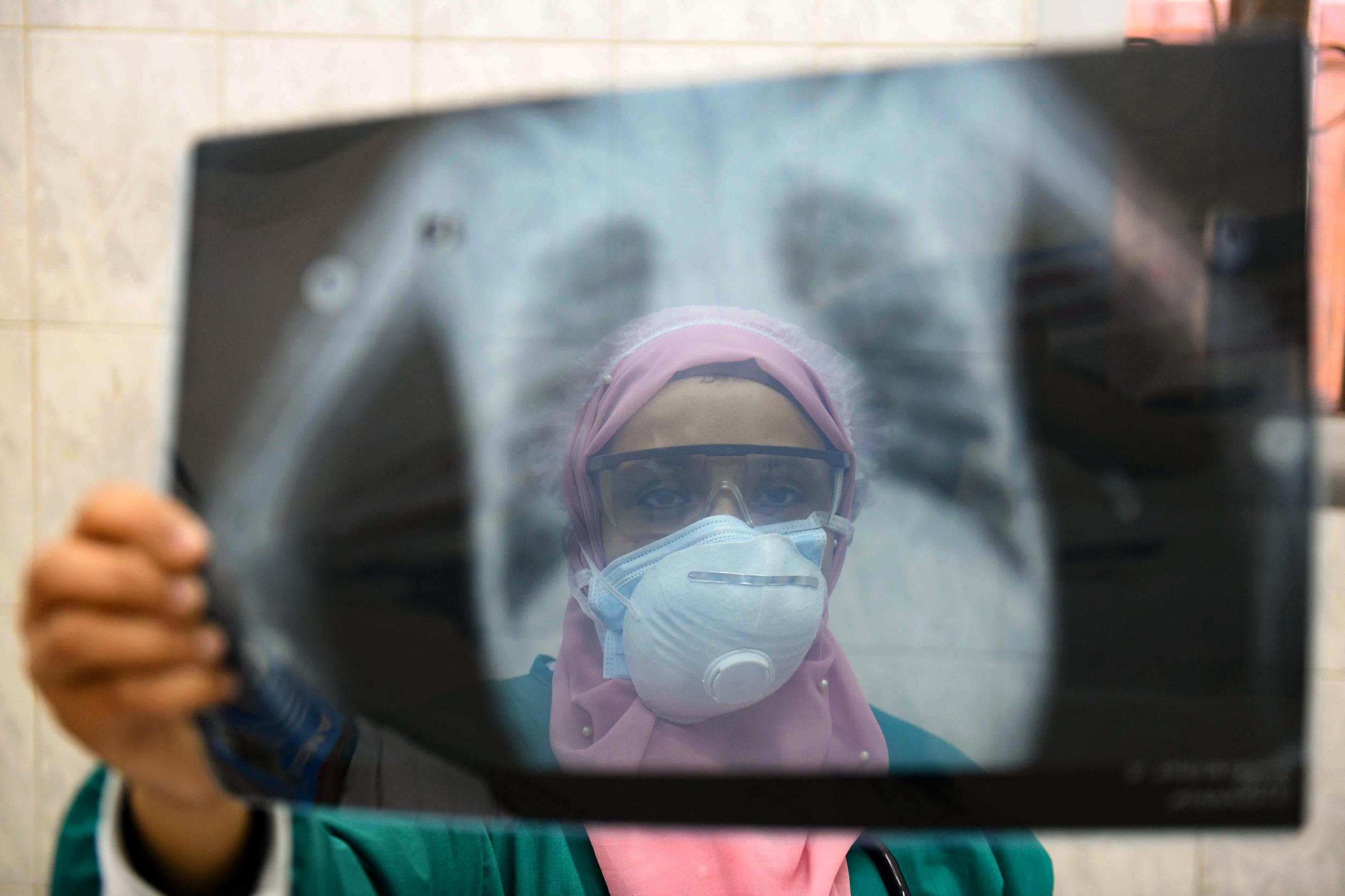 With a population of 100 million, Egypt is the Arab world's most populous country and doctors have been battling to prevent the coronavirus from taking hold