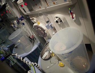 Un appareil de dialyse, utilisé dans le traitement de l'insuffisance rénale.