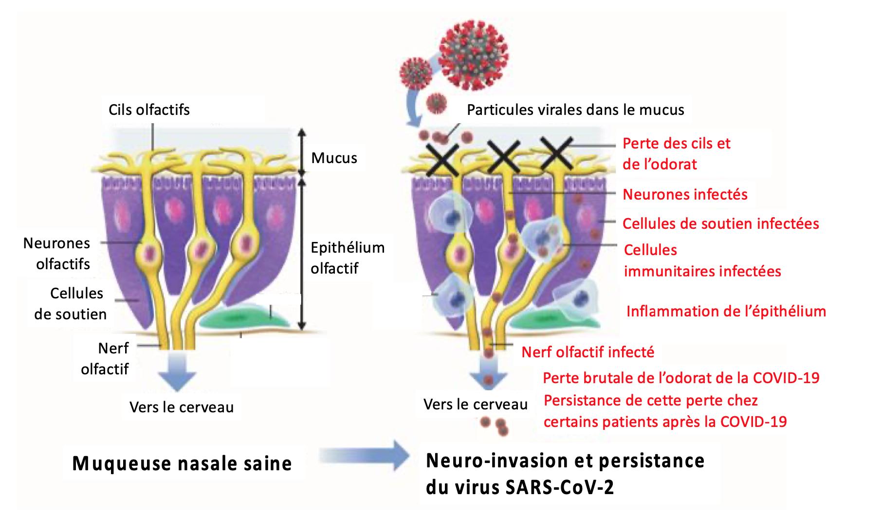 Esquema que representa las diferentes etapas de la pérdida del olfato en en el epitelio olfativo ligados con la Covid 19.