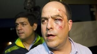 Un membre de l'opposition lors d'une conférence après la bagarre au Parlement, le 30 avril 2013.