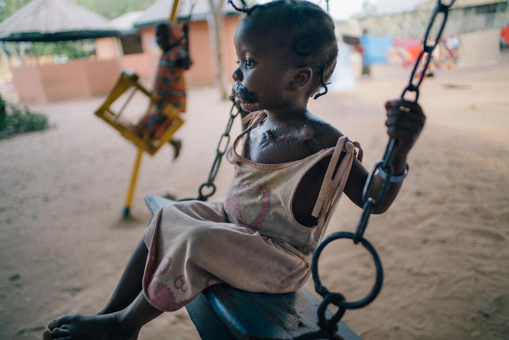 Maryam, de 4 años, en el patio del Sokoto Noma Hospital, fue admitida en marzo del 2016. La niña ha tenido varias cirugías reconstructivas de su cara, incluyendo un injerto de piel tomado de su pecho para reemplazar el tejido destruído. Noviembre 2016.