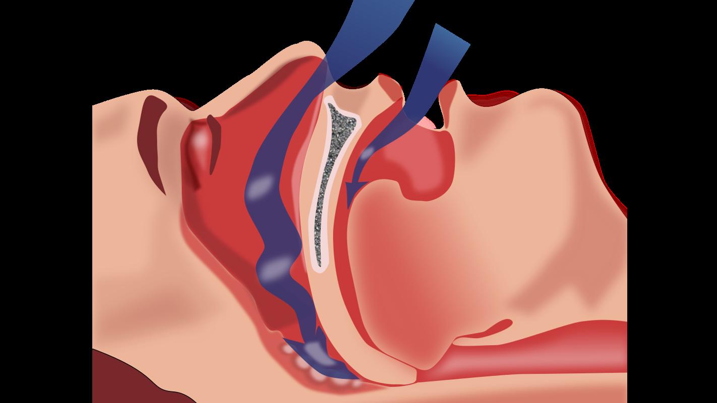 Esquema explicando a obstrução da ventilação no síndroma da apneia do sono.