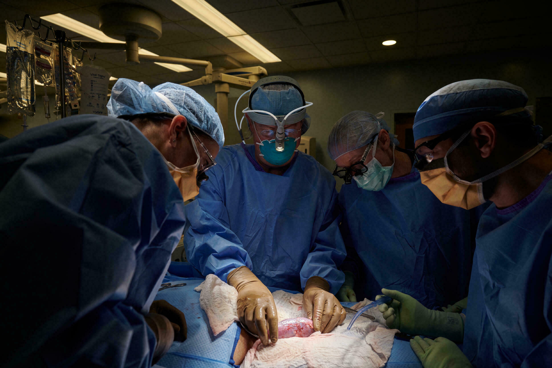 Un equipo de cirujanos del NYU Langone Hospital examina un riñón de cerdo trasplantado a un humano el 25 de septiembre de 2021