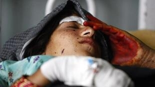 Mulher afegã descansa em hospital após bombardeio aéreo da Otan na província de Laghman.