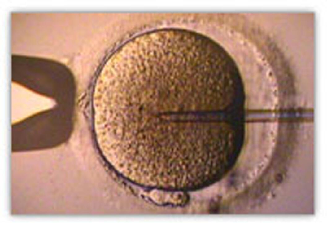 Fécondation in vitro.