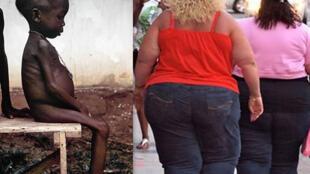 Dois desafios da 2ª conferência da Fao em Roma: reduzir a desnutrição e a obesidade.