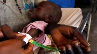 Un enfant congolais sévèrement malnutri et déplacé à l'intérieur du pays est examiné à l'hôpital général de Tshiamala de Mwene Ditu dans la province du Kasaï oriental en République démocratique du Congo, le 15 mars 2018.
