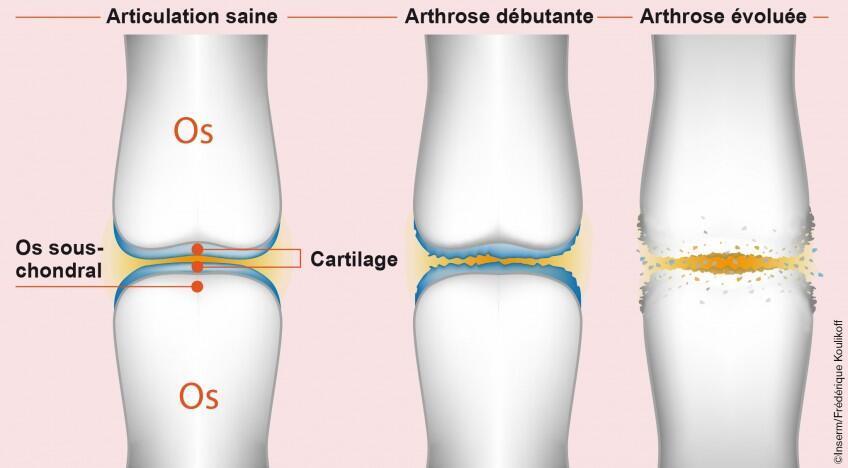 Ilustración de una articulación sana, aparición de la artrosis y artrosis avanzada.