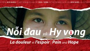"""Triển lãm """"Nỗi đau và Hy vọng – 20 năm HIV/AIDS ở Việt Nam"""" do Bảo tàng Dân tộc học Việt Nam, Trung tâm Nghiên cứu Phát triển Y tế Cộng đồng (CCRD) và Đại học Columbia (Hoa Kỳ) tổ chức, 2010-2011."""