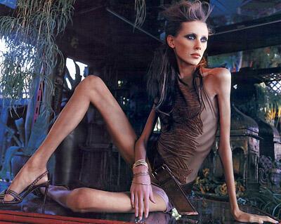A modelo brasileira Ana Carolina Reston, morreu aos 18 anos, pesando 40kg para 1,74m de altura.