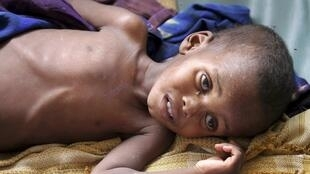 处于饥荒中的索马里儿童