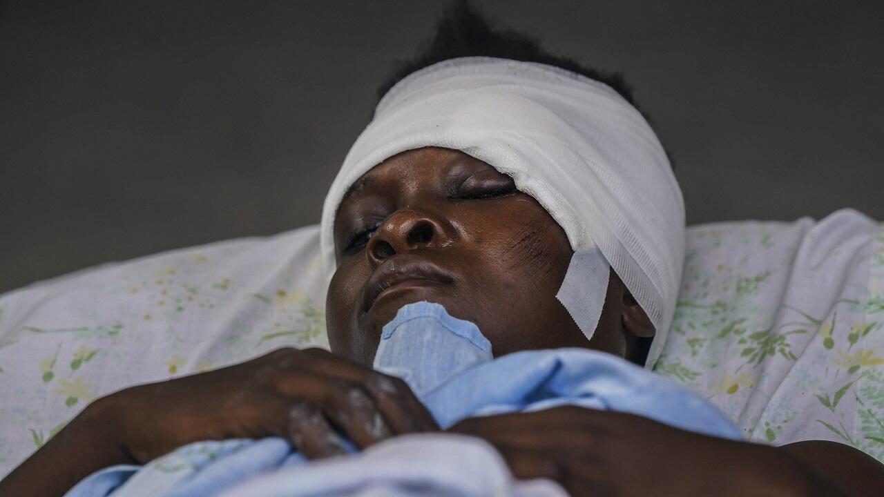 PHOTO Personne blessée à Les Clayes en Haïti - 16 août 2021