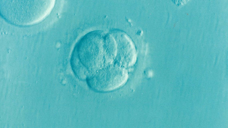 Dans près d'un tiers des cas d'infertilité, aucune cause n'est établie.