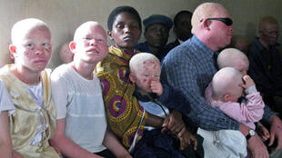 Albinos in Tanzania are regularly stigmatised.