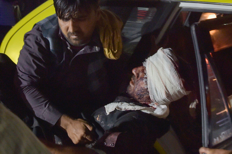 شمار زخمیهای حملات پنجشنبه به فرودگاه کابل به بیش از ١۵٠ تن رسید ـ ٢۶ اوت ٢٠٢١