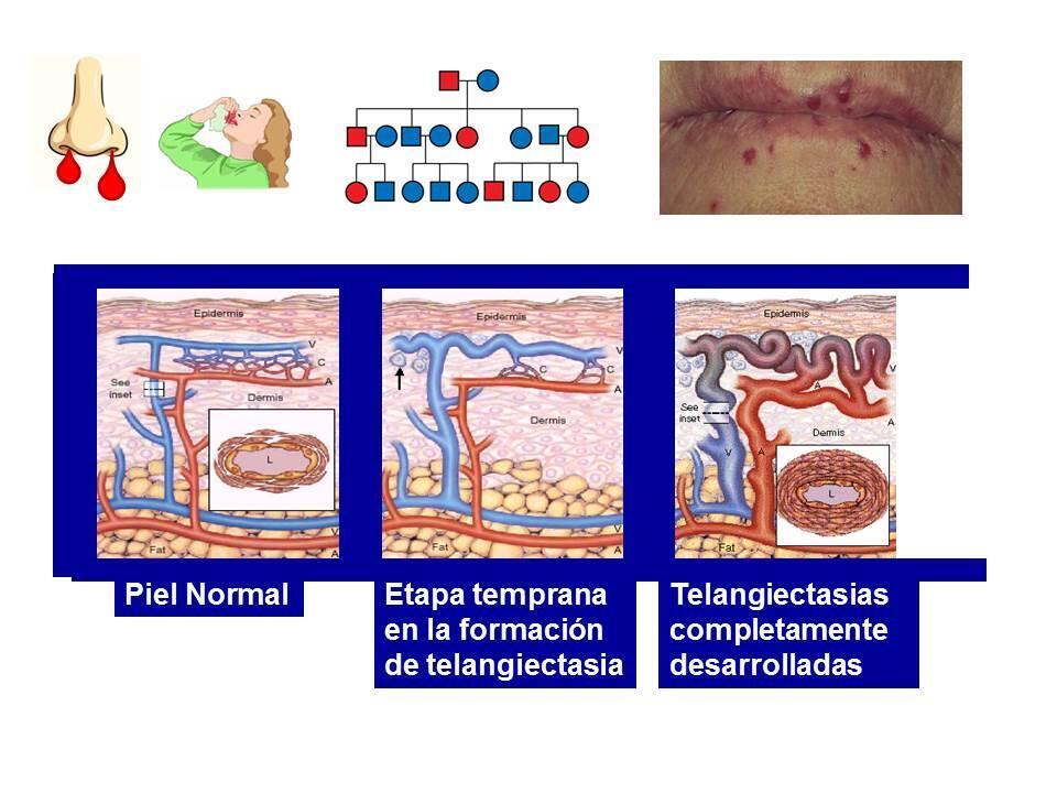 Gráfico explicativo de la Telangectasia Hemorrágica Hereditaria.