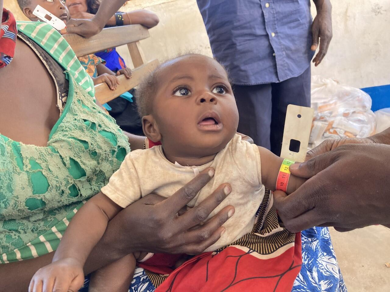 DRC malnutrition baby