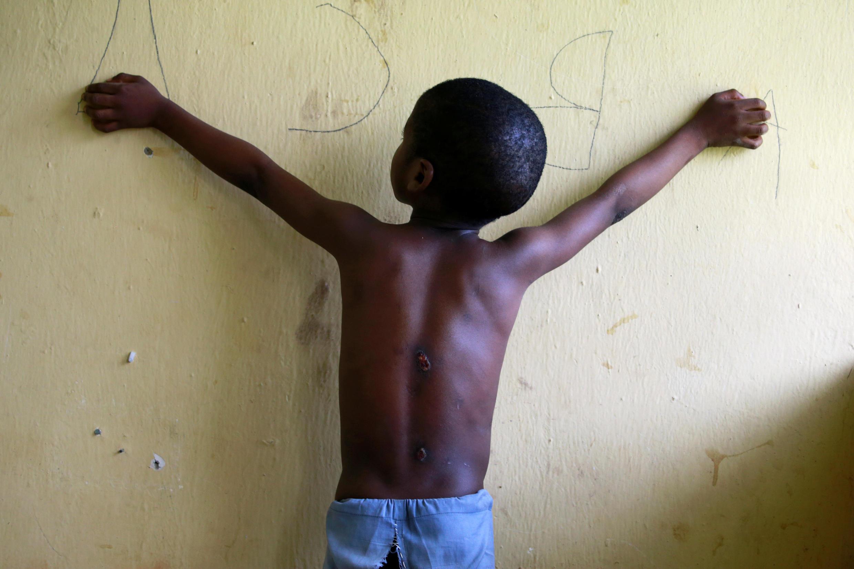 Un garçon de 6 ans, sauvé par la police, révèle des cicatrices sur son dos dans un camp de transit mis en place pour s'occuper des prisonniers libérés à Kaduna, au Nigeria. 28 septembre 2019.