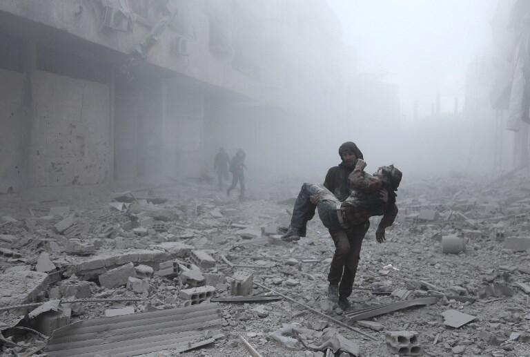 Mtu aliyejeruhiwa akipewa msaada Mashariki mwa Ghouta nchini Syria