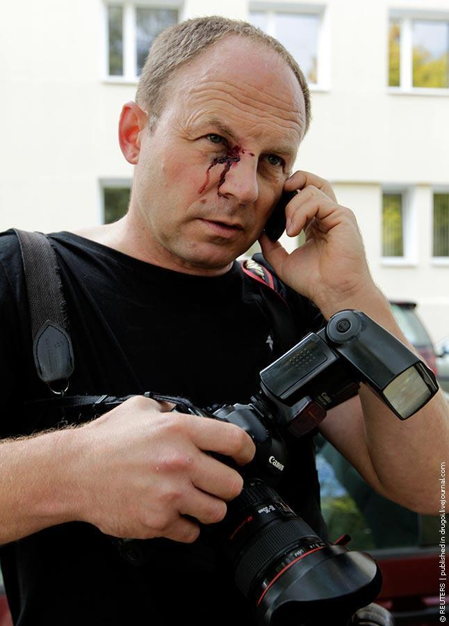 Фотокорреспондент Associated Press Сергей Гриц после нападения