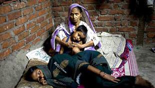 Trong năm 2012, khoảng 1,3 triệu người trên thế giới tử vong vì bệnh lao (Ảnh : WHO)