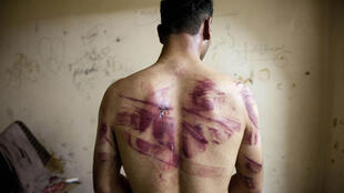 A Syrian man shows torture marks on his back after he was released from regime forces in the northern city of Aleppo